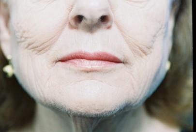 Laser Skin Resurfacing Plastic Surgeon Scottsdale