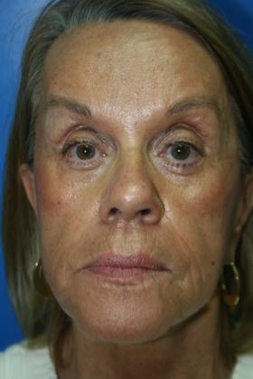 Arizona facial implants